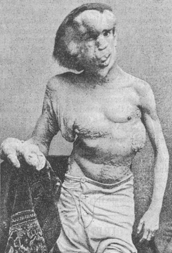 Человек-слон Джоан Меррик