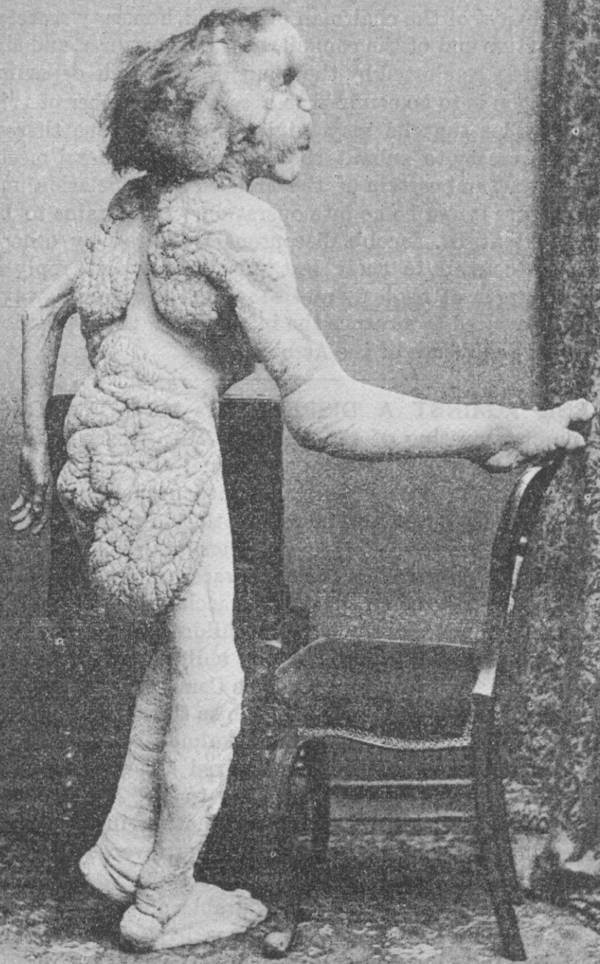 Джозеф Меррик.