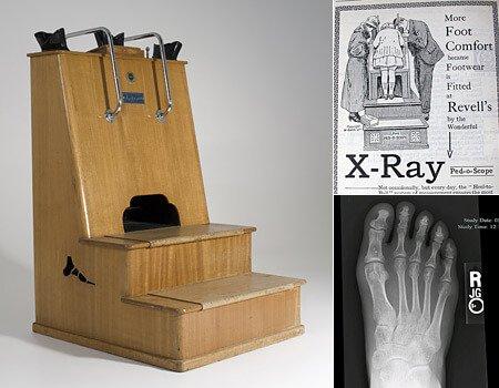 рентген для примерки обуви
